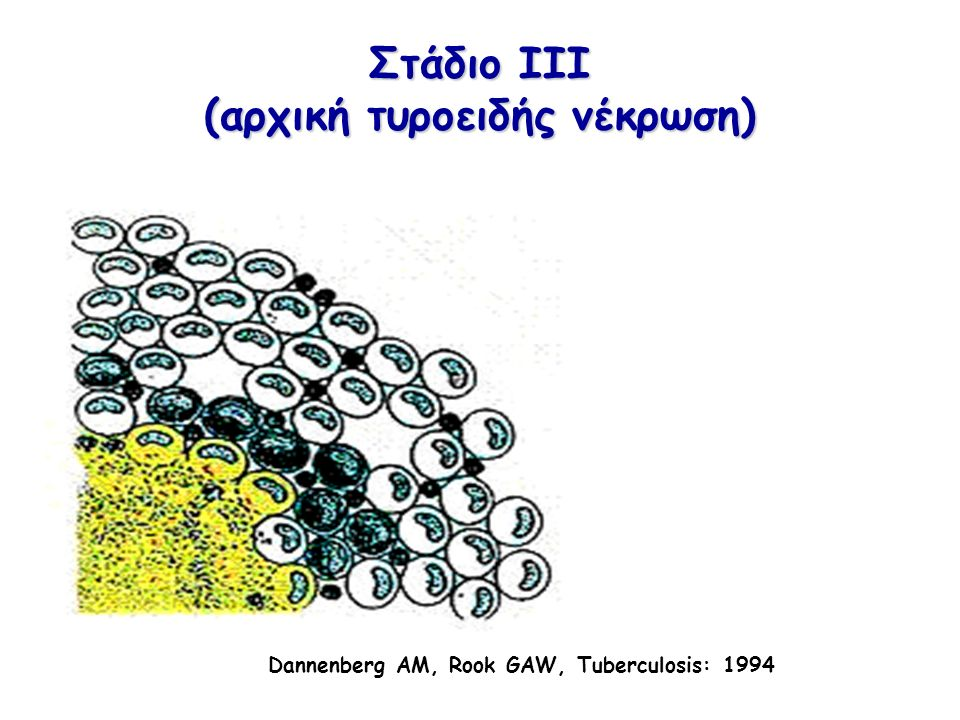 Κυτταροκίνες στη φυματίωση Κυτταροκίνες στη φυματίωση (IFN-γ) Παραγωγή από ενεργοποιημένα Τ-κύτταρα, ΝΚ κύτταρα, μακροφάγα και δενδριτικά κύτταρα Εμπλοκή σε κυτταρικό πολλαπλασιασμό και προσκόλληση, ενεργοποίηση μακροφάγων και αντιγονοπαρουσίασης, σχηματισμό κοκκιώματος και απόπτωση Ρύθμιση ανοσιακής απάντησης Σε γενετική έλλειψη IFN-γ ή iNOS παρατηρείται ταχεία εξέλιξη της νόσου, αδυναμία δημιουργίας φυματώματος και υψηλή θνητότητα Clinical Developmental Immunology 2012; 193923