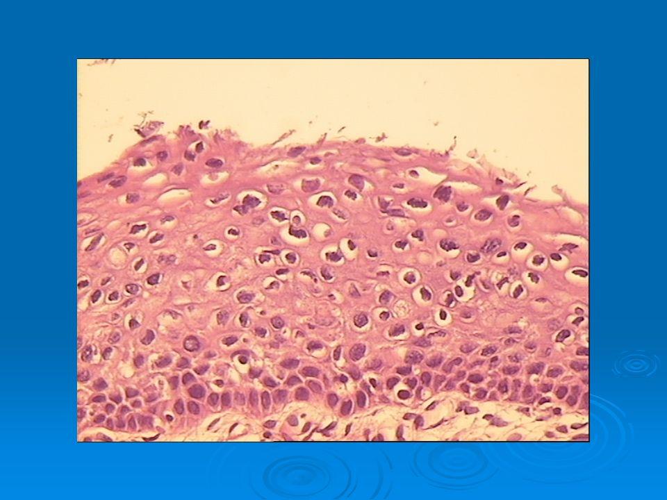 Μακροσκοπική εικόνα: Εξωφυτικός ή διηθητικός Σημαντικές πληροφορίες για τον κλινικό γιατρό: το πάχος διήθησης η διήθηση του ισθμού η διαφοροποίηση