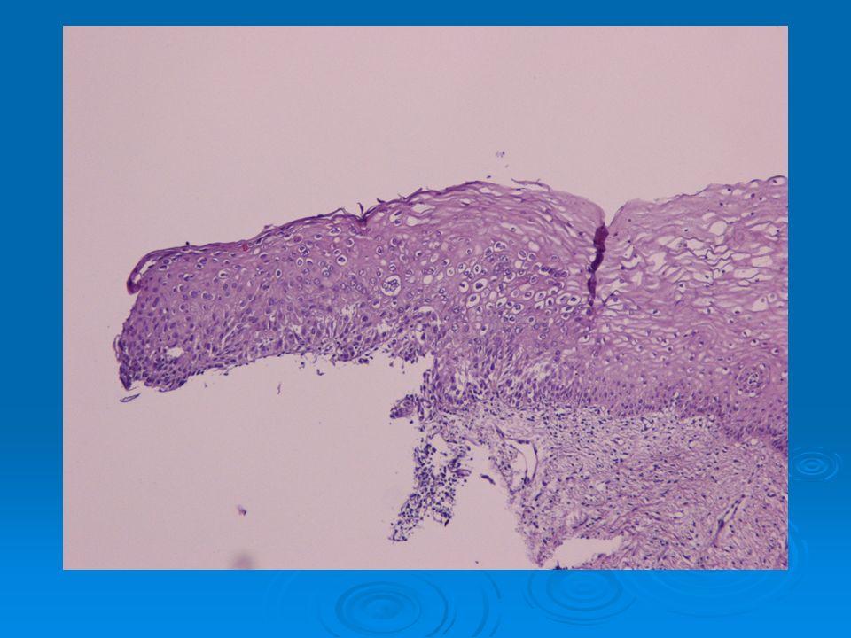 Διάγνωση  Μέτρια διαφοροποιημένο διηθητικό αδενοκαρκίνωμα του ενδομητρίου, ενδομητριοειδούς τύπου