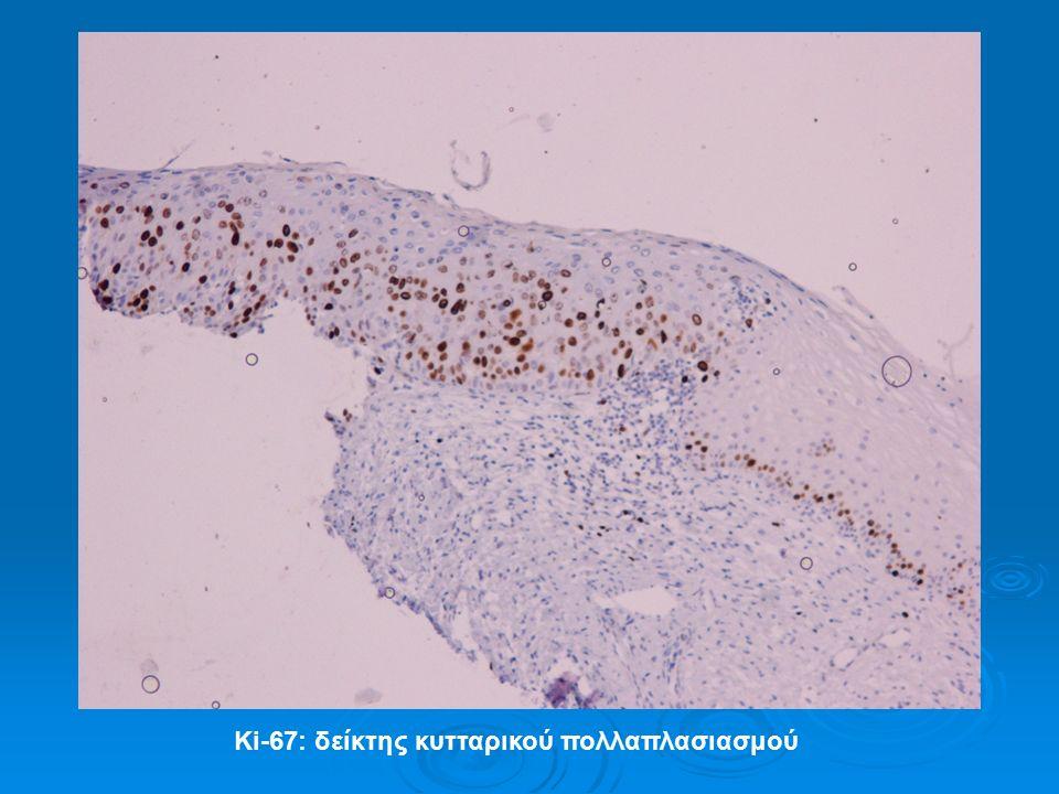 Ki-67: δείκτης κυτταρικού πολλαπλασιασμού