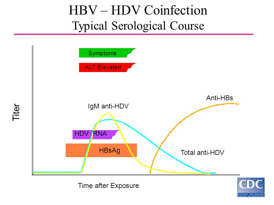 HBV – HDV Coinfection Typical Serological Course