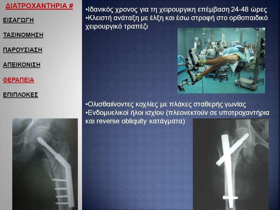 ΕΙΣΑΓΩΓΗ ΤΑΞΙΝΟΜΗΣΗ ΠΑΡΟΥΣΙΑΣΗ ΑΠΕΙΚΟΝΙΣΗ ΘΕΡΑΠΕΙΑ ΕΠΙΠΛΟΚΕΣ ΔΙΑΤΡΟΧΑΝΤΗΡΙΑ # Ιδανικός χρονος για τη χειρουργικη επέμβαση 24-48 ώρες Κλειστή ανάταξη με έλξη και έσω στροφή στο ορθοπαιδικό χειρουργικό τραπέζι Ολισθαιίνοντες κοχλίες με πλάκες σταθερής γωνίας Ενδομυελικοί ήλοι ισχίου (πλεονεκτούν σε υποτροχαντήρια και reverse obliquity κατάγματα)