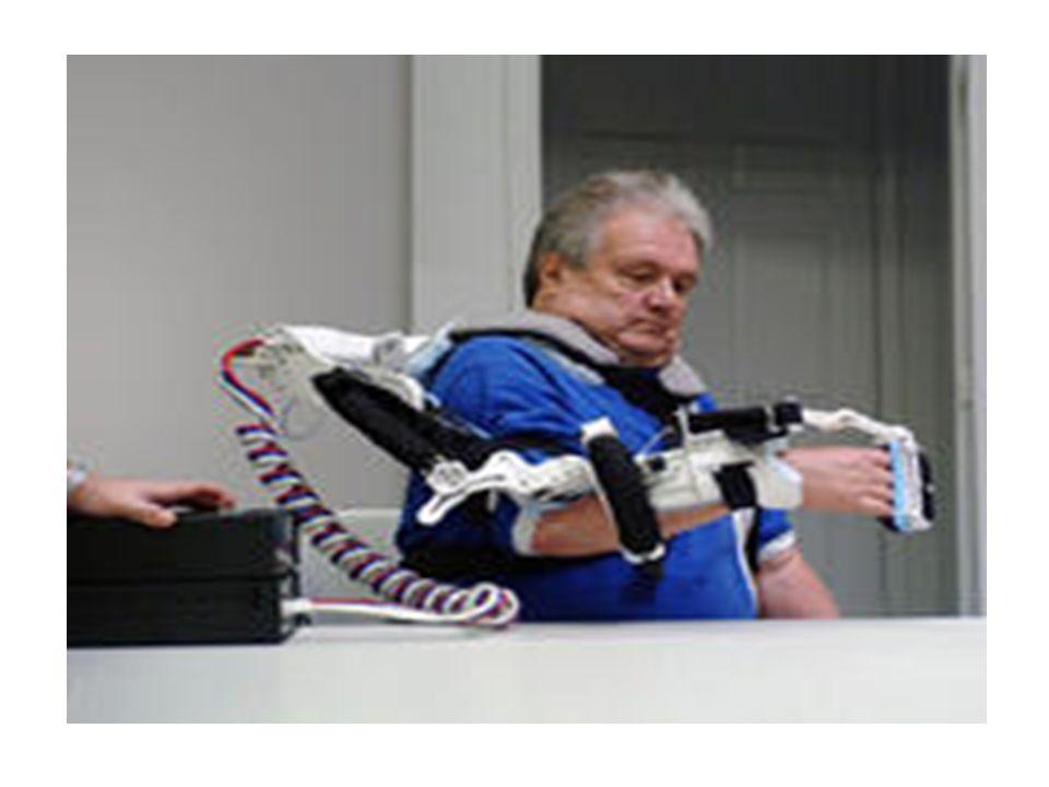 ΑΙΤΙΑ ΑΚΡΩΤΗΡΙΑΣΜΩΝ Για το άνω άκρο: 90% ανεπανόρθωτος τραυματισμός άκρου που απαιτείται ακρωτηριασμός για την σωτηρία του ατόμου Εγκαύματα – κρυοπαγήματα Αγγειακές παθήσεις π.χ.