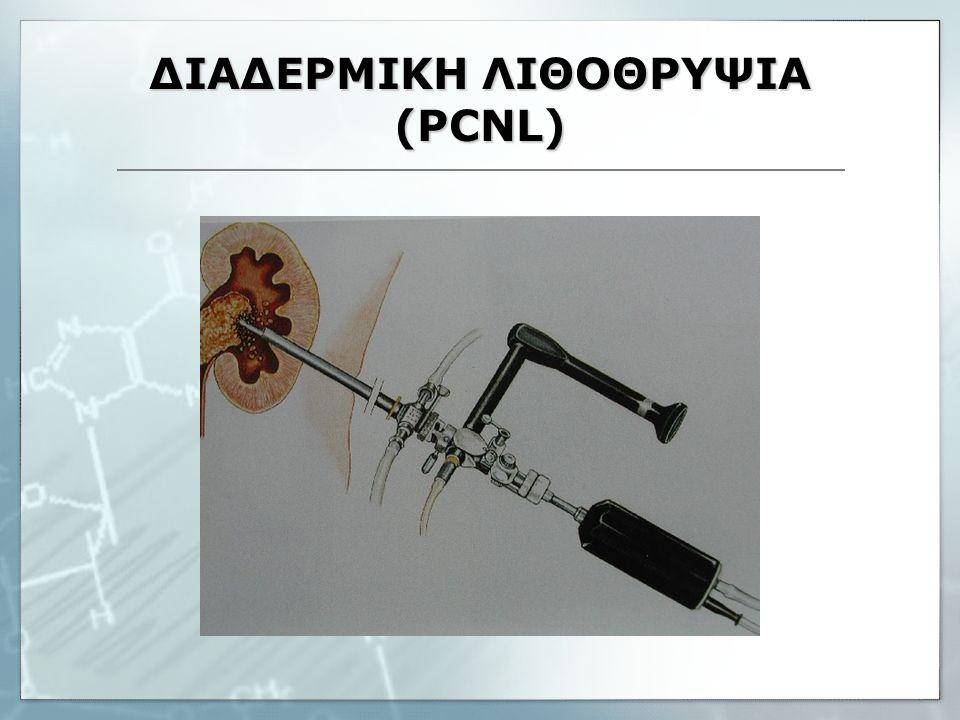ΔΙΑΔΕΡΜΙΚΗ ΛΙΘΟΘΡΥΨΙΑ (PCNL)