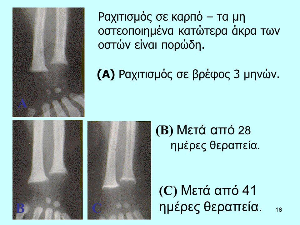 16 Ραχιτισμός σε καρπό – τα μη οστεοποιημένα κατώτερα άκρα των οστών είναι πορώδη. (A) Ραχιτισμός σε βρέφος 3 μηνών. (B) Μετά από 28 ημέρες θεραπεία.