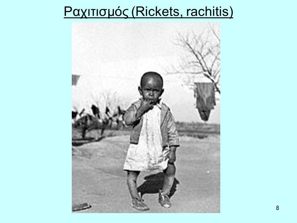 8 Ραχιτισμός (Rickets, rachitis)