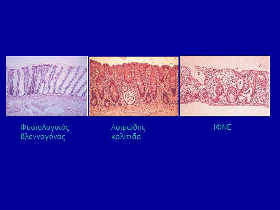 Φυσιολογικός βλεννογόνος Λοιμώδης κολίτιδα ΙΦΝΕ