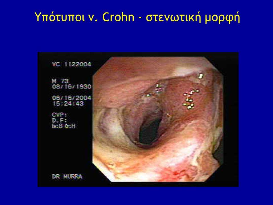 Υπότυποι ν. Crohn - στενωτική μορφή
