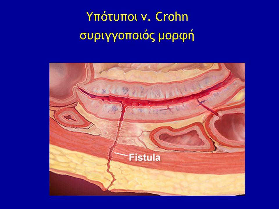 Υπότυποι ν. Crohn συριγγοποιός μορφή