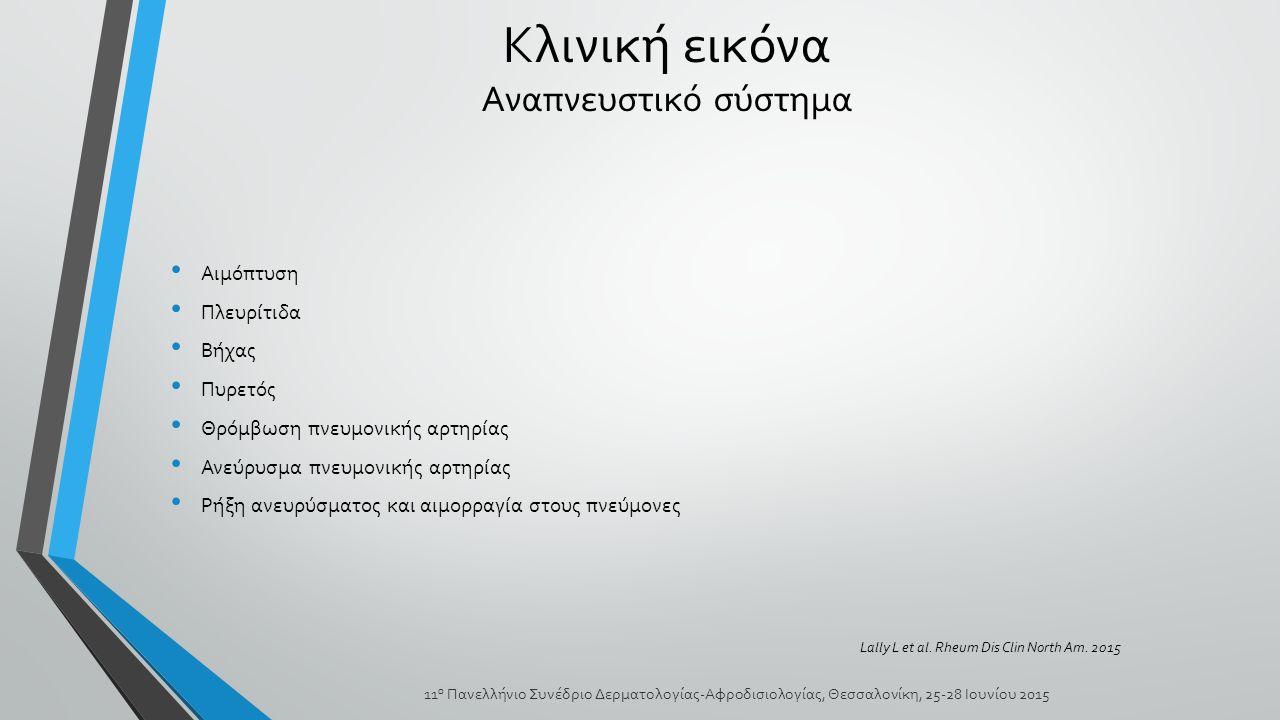 Αιμόπτυση Πλευρίτιδα Βήχας Πυρετός Θρόμβωση πνευμονικής αρτηρίας Ανεύρυσμα πνευμονικής αρτηρίας Ρήξη ανευρύσματος και αιμορραγία στους πνεύμονες Κλινική εικόνα Αναπνευστικό σύστημα 11 ο Πανελλήνιο Συνέδριο Δερματολογίας-Αφροδισιολογίας, Θεσσαλονίκη, 25-28 Ιουνίου 2015 Lally L et al.