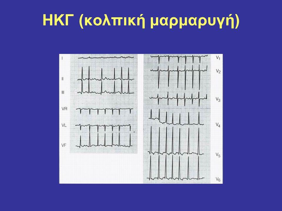 HKΓ (κολπική μαρμαρυγή)