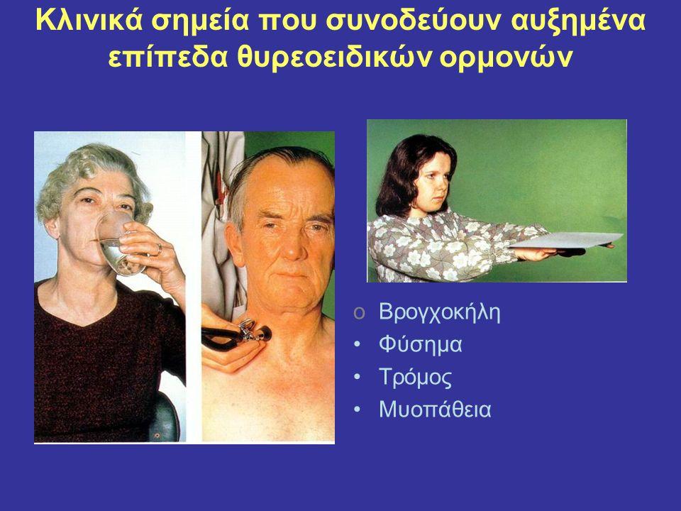 Κλινικά σημεία που συνοδεύουν αυξημένα επίπεδα θυρεοειδικών ορμονών oΒρογχοκήλη Φύσημα Τρόμος Μυοπάθεια