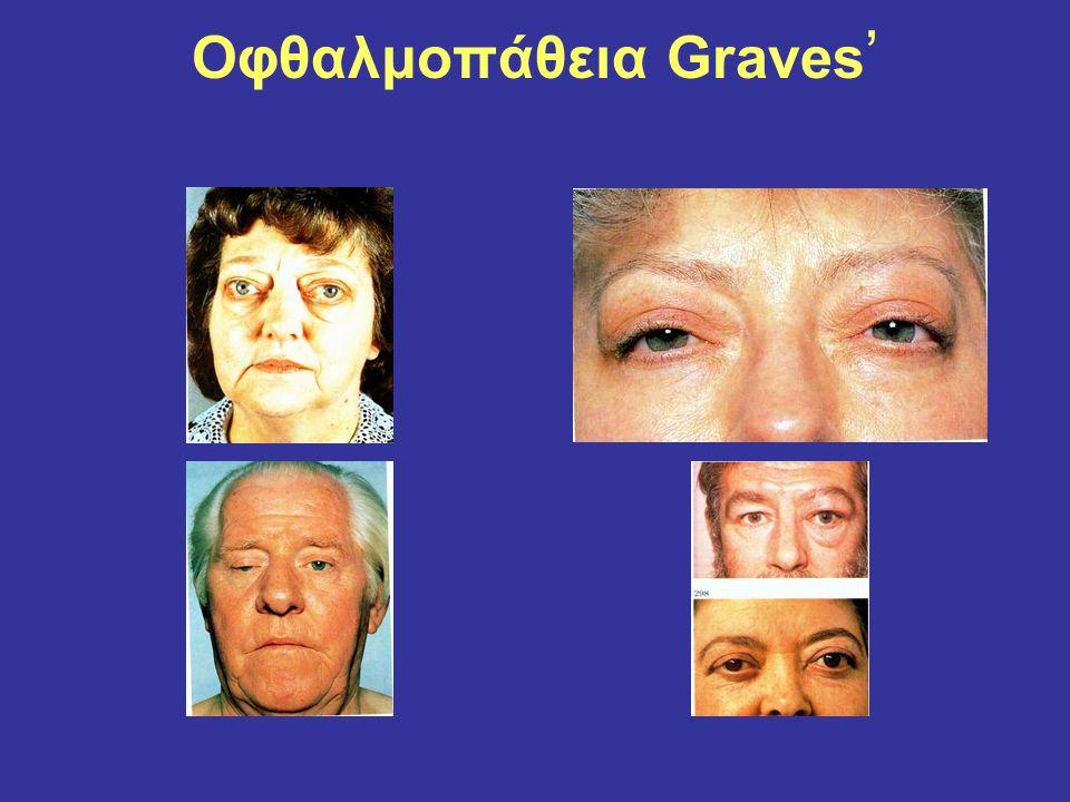 Οφθαλμοπάθεια Graves '