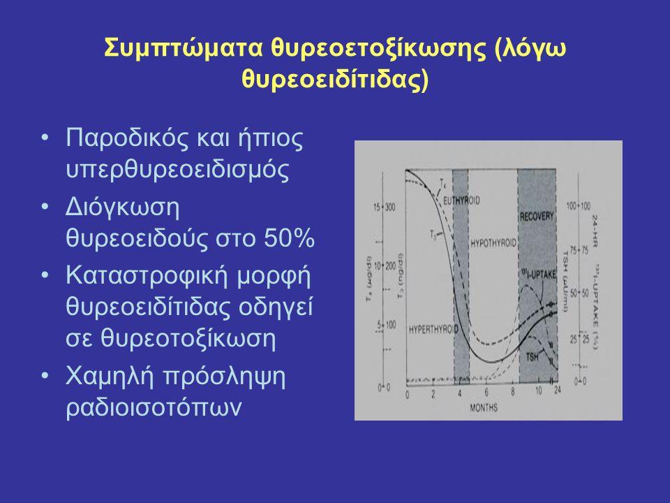Συμπτώματα θυρεοετοξίκωσης (λόγω θυρεοειδίτιδας) Παροδικός και ήπιος υπερθυρεοειδισμός Διόγκωση θυρεοειδούς στο 50% Καταστροφική μορφή θυρεοειδίτιδας