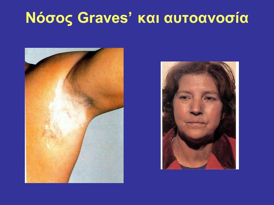 Νόσος Graves' και αυτοανοσία