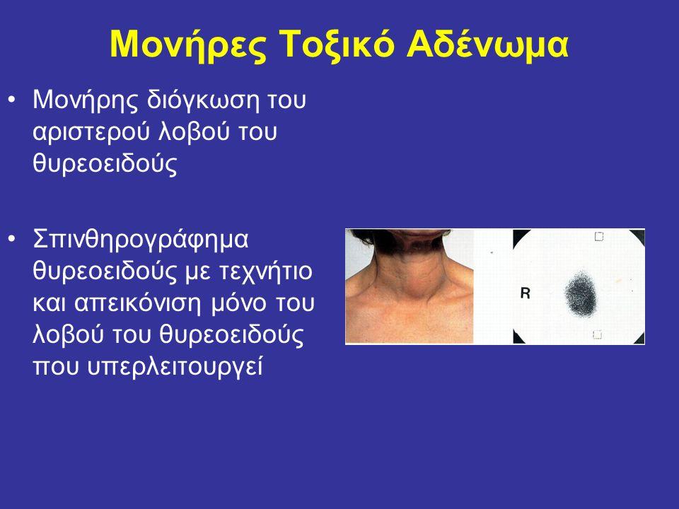 Μονήρες Τοξικό Αδένωμα Μονήρης διόγκωση του αριστερού λοβού του θυρεοειδούς Σπινθηρογράφημα θυρεοειδούς με τεχνήτιο και απεικόνιση μόνο του λοβού του θυρεοειδούς που υπερλειτουργεί