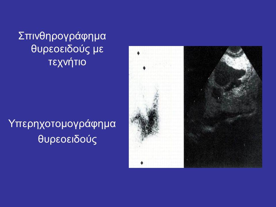 Σπινθηρογράφημα θυρεοειδούς με τεχνήτιο Υπερηχοτομογράφημα θυρεοειδούς