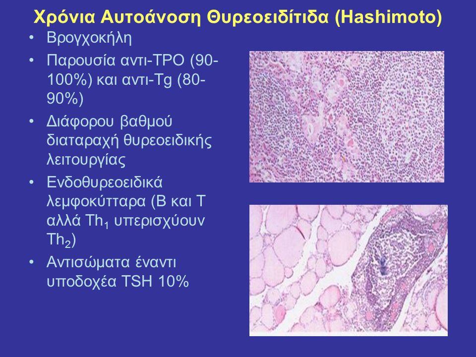 Χρόνια Αυτοάνοση Θυρεοειδίτιδα (Hashimoto) Bρογχοκήλη Παρουσία αντι-TPO (90- 100%) και αντι-Tg (80- 90%) Διάφορου βαθμού διαταραχή θυρεοειδικής λειτουργίας Ενδοθυρεοειδικά λεμφοκύτταρα (Β και Τ αλλά Th 1 υπερισχύουν Th 2 ) Αντισώματα έναντι υποδοχέα TSH 10%