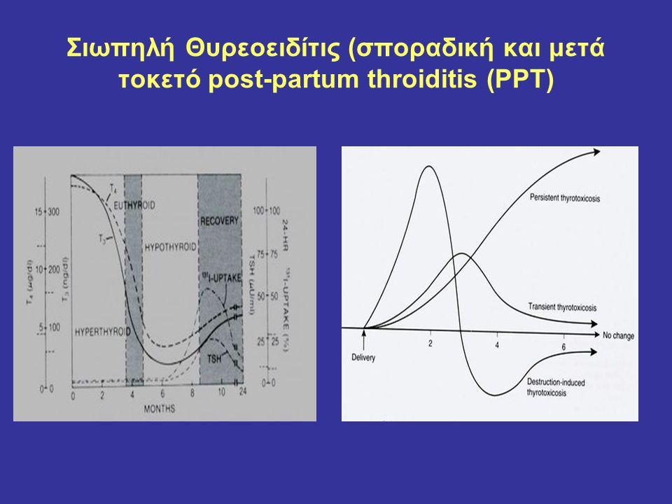 Νόσος Graves Υπερπλασία θυλακίων Εστιακή λεμφοκυτταρική διήθηση (σπάνια germinal centers) Η πλειονότητα είναι Τh 2 λεμφοκύτταρα Παρουσία αντισωμάτων έναντι υποδοχέα TSH 90% Αντι-Tg (50-70%) αντι-TPO (50-80%)