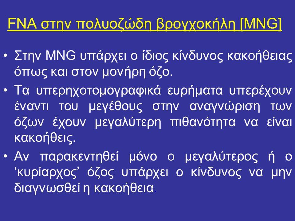 FNA στην πολυοζώδη βρογχοκήλη [MNG] Στην MNG υπάρχει ο ίδιος κίνδυνος κακοήθειας όπως και στον μονήρη όζο. Τα υπερηχοτομογραφικά ευρήματα υπερέχουν έν