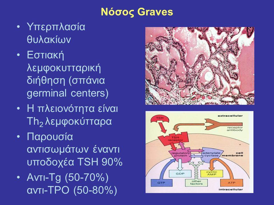 Νόσος Graves Υπερπλασία θυλακίων Εστιακή λεμφοκυτταρική διήθηση (σπάνια germinal centers) Η πλειονότητα είναι Τh 2 λεμφοκύτταρα Παρουσία αντισωμάτων έ