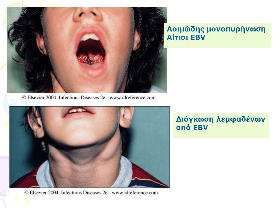 Λοιμώδης μονοπυρήνωση Αίτιο: EBV Διόγκωση λεμφαδένων από EBV