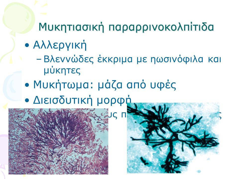 Μυκητιασική παραρρινοκολπίτιδα Αλλεργική –Βλεννώδες έκκριμα με ηωσινόφιλα και μύκητες Μυκήτωμα: μάζα από υφές Διεισδυτική μορφή –Επέκταση στους παρακε