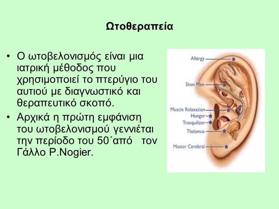 Ωτοθεραπεία Ο ωτοβελονισμός είναι μια ιατρική μέθοδος που χρησιμοποιεί το πτερύγιο του αυτιού με διαγνωστικό και θεραπευτικό σκοπό.