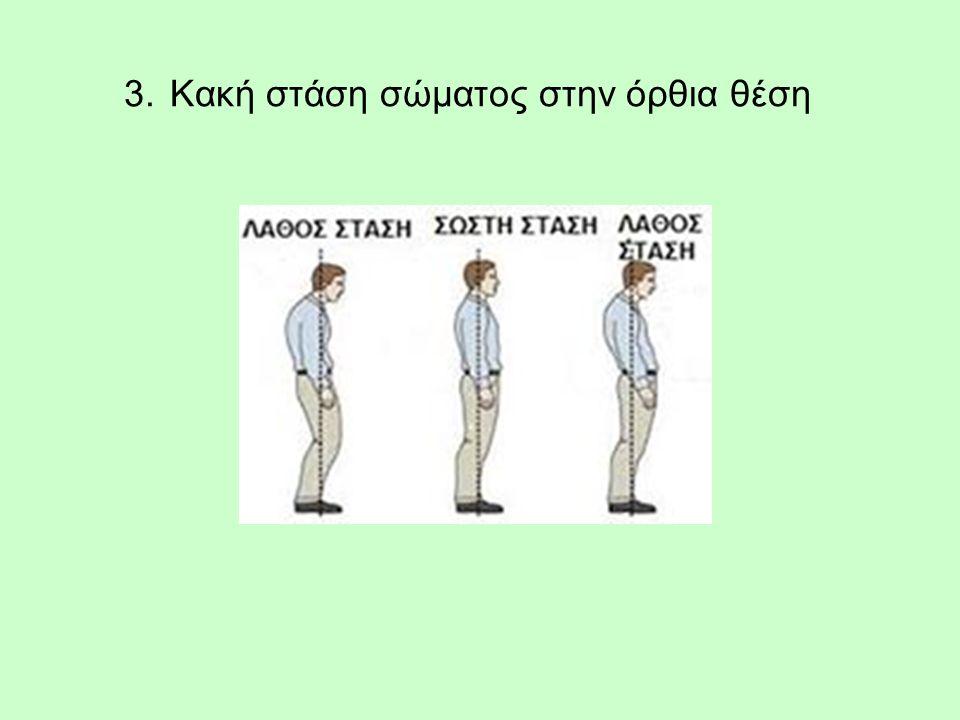 3. Κακή στάση σώματος στην όρθια θέση
