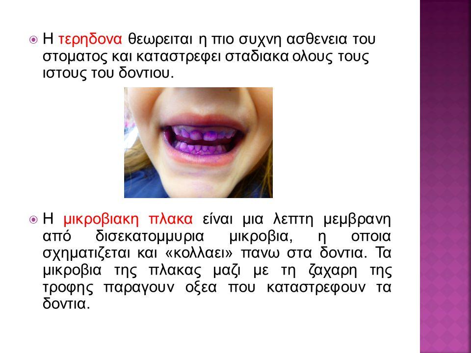  Η τερηδονα θεωρειται η πιο συχνη ασθενεια του στοματος και καταστρεφει σταδιακα ολους τους ιστους του δοντιου.