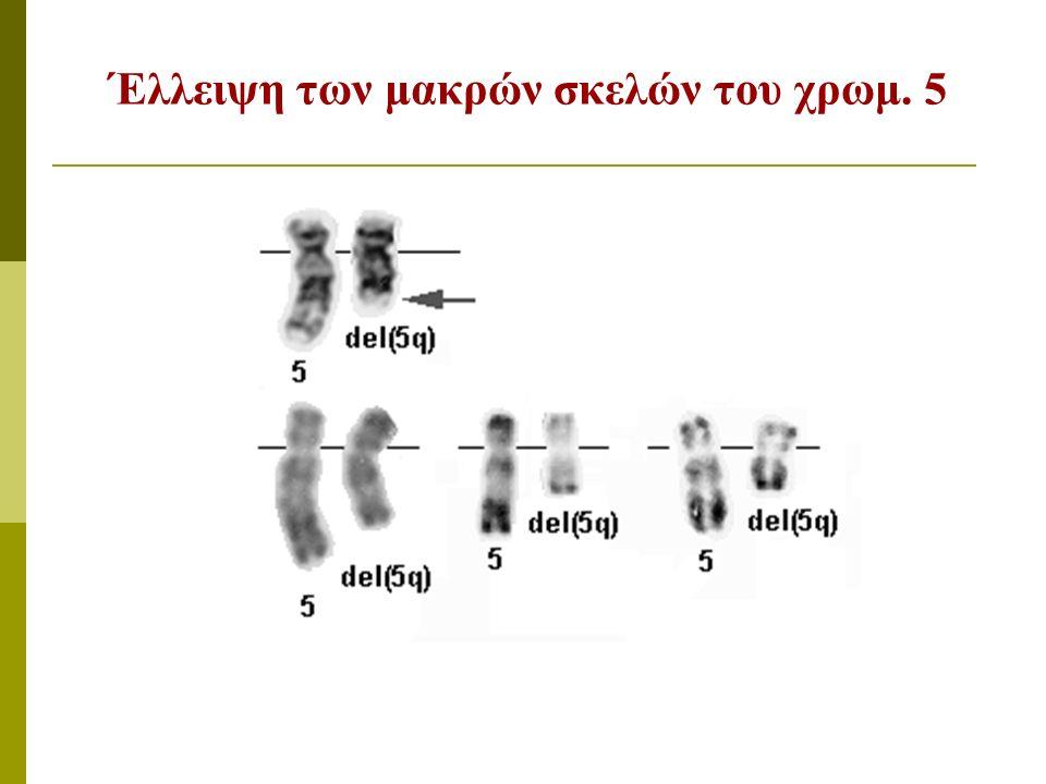 Έλλειψη των μακρών σκελών του χρωμ. 5