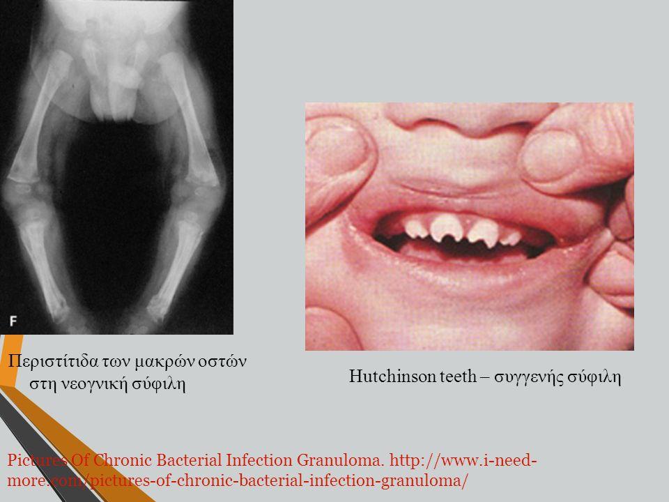 Περιστίτιδα των μακρών οστών στη νεογνική σύφιλη Hutchinson teeth – συγγενής σύφιλη Pictures Of Chronic Bacterial Infection Granuloma. http://www.i-ne