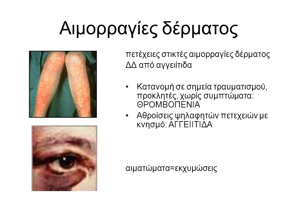 Αιμορραγίες δέρματος πετέχειες στικτές αιμορραγίες δέρματος ΔΔ από αγγειίτιδα Κατανομή σε σημεία τραυματισμού, προκλητές, χωρίς συμπτώματα: ΘΡΟΜΒΟΠΕΝΙΑ Αθροίσεις ψηλαφητών πετεχειών με κνησμό: ΑΓΓΕΙΙΤΙΔΑ αιματώματα=εκχυμώσεις
