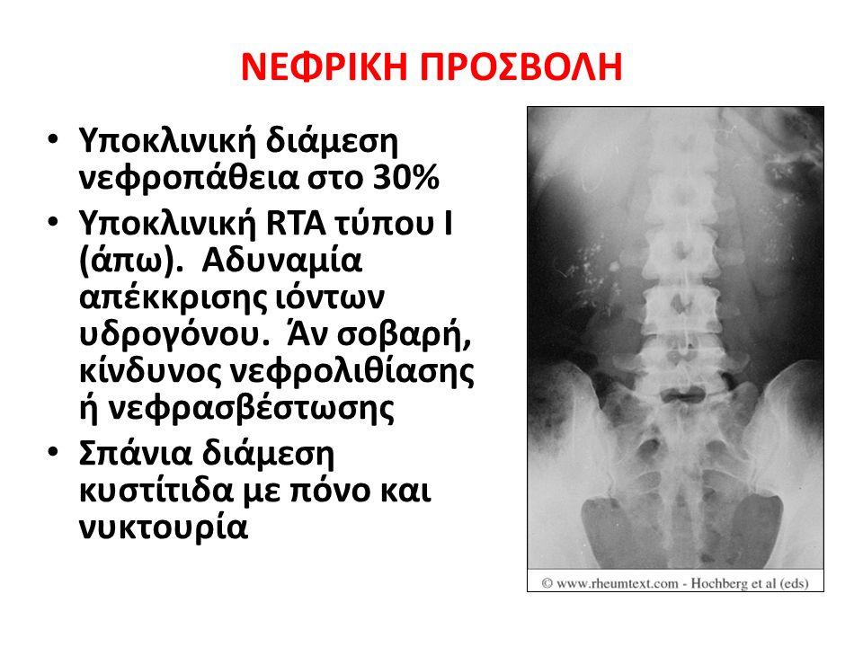 ΝΕΦΡΙΚΗ ΠΡΟΣΒΟΛΗ Υποκλινική διάμεση νεφροπάθεια στο 30% Υποκλινική RTA τύπου Ι (άπω).