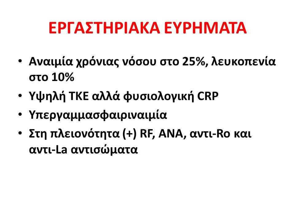 ΕΡΓΑΣΤΗΡΙΑΚΑ ΕΥΡΗΜΑΤΑ Αναιμία χρόνιας νόσου στο 25%, λευκοπενία στο 10% Υψηλή ΤΚΕ αλλά φυσιολογική CRP Υπεργαμμασφαιριναιμία Στη πλειονότητα (+) RF, ANA, αντι-Ro και αντι-La αντισώματα