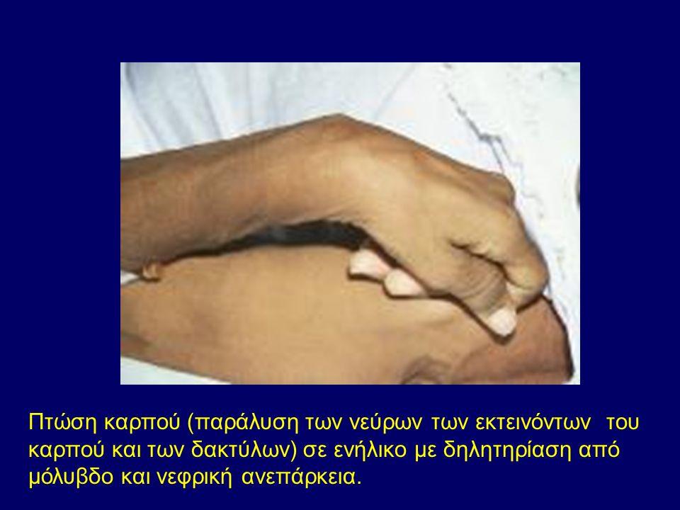 Πτώση καρπού (παράλυση των νεύρων των εκτεινόντων του καρπού και των δακτύλων) σε ενήλικο με δηλητηρίαση από μόλυβδο και νεφρική ανεπάρκεια.