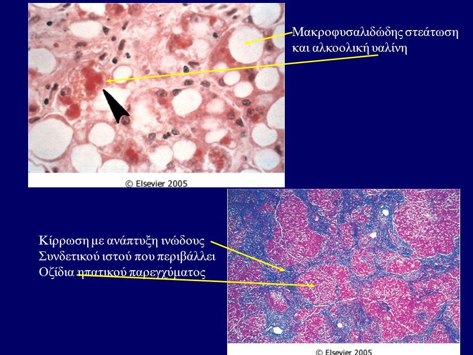 Μακροφυσαλιδώδης στεάτωση και αλκοολική υαλίνη Κίρρωση με ανάπτυξη ινώδους Συνδετικού ιστού που περιβάλλει Οζίδια ηπατικού παρεγχύματος
