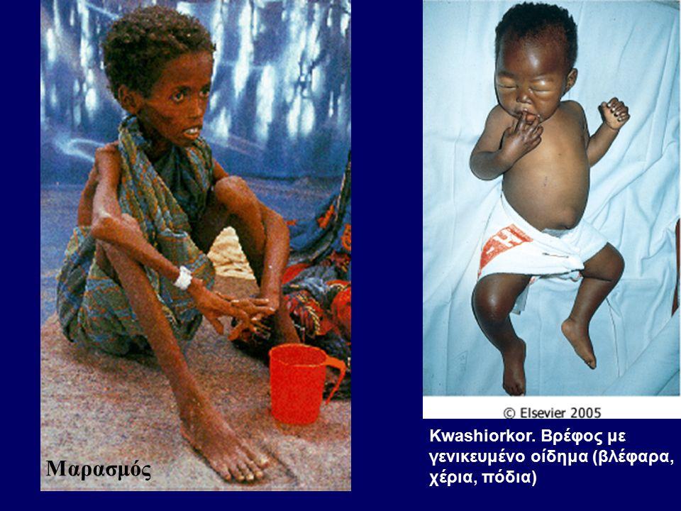 Kwashiorkor. Βρέφος με γενικευμένο οίδημα (βλέφαρα, χέρια, πόδια) Μαρασμός