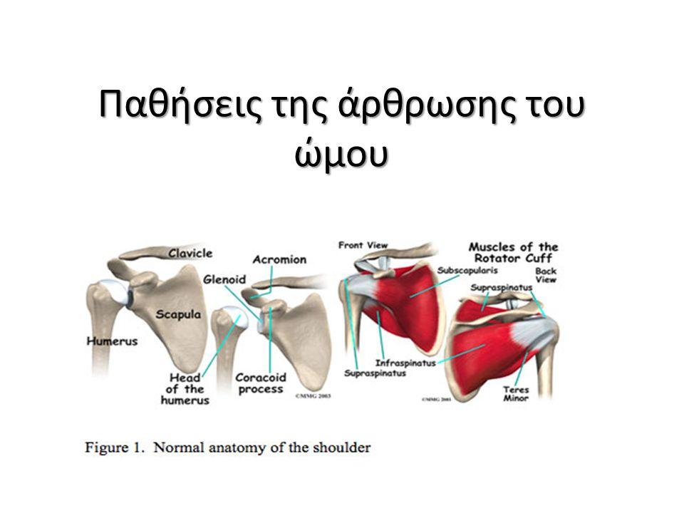 Συμφυτική θυλακίτιδα ( παγωμένος ώμος) Εκφυλιστική αρθρίτιδα της άρθρωσης του ώμου Ρευματοειδής αρθρίτιδες Μετατραυματική αρθρίτιδα Οπίσθιο παραμελημένο εξάρθρημα ώμου Άσηπτη νέκρωση της κεφαλής του βραχιονίου