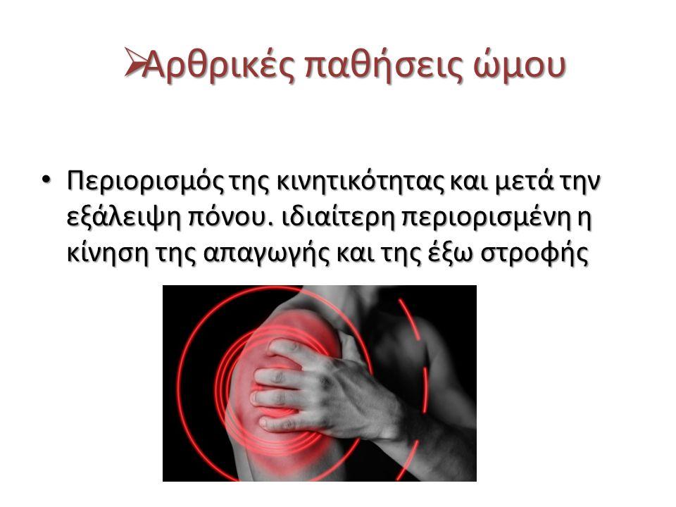  Αρθρικές παθήσεις ώμου Περιορισμός της κινητικότητας και μετά την εξάλειψη πόνου. ιδιαίτερη περιορισμένη η κίνηση της απαγωγής και της έξω στροφής Π