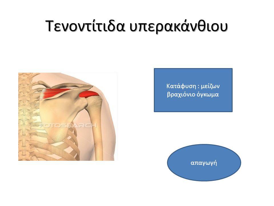 Τενοντίτιδα υπερακάνθιου Κατάφυση : μείζων βραχιόνιο όγκωμα απαγωγή