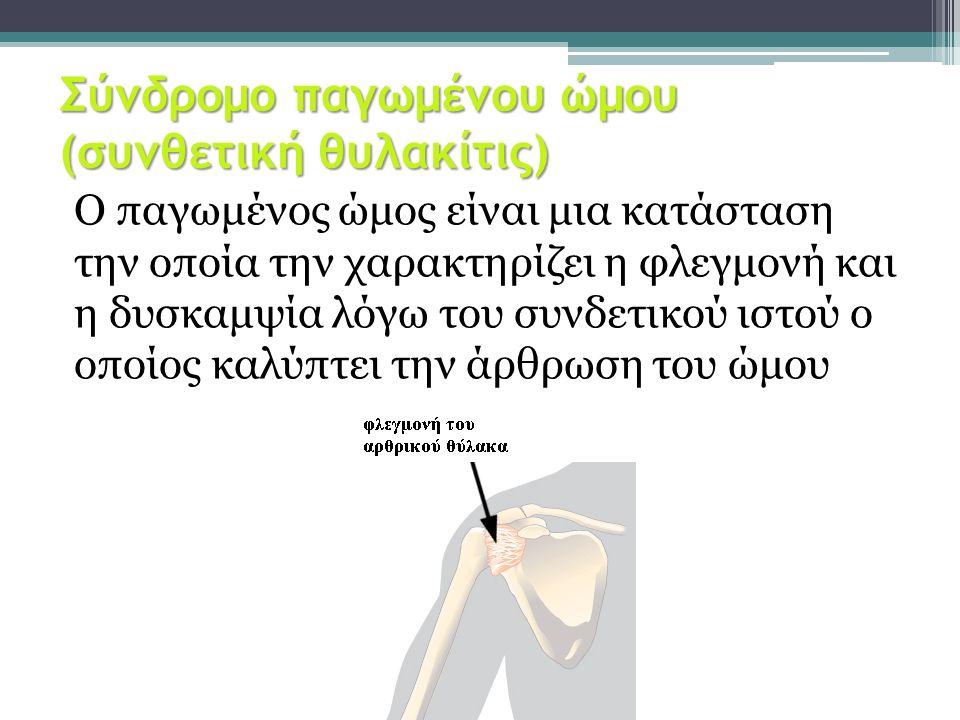 Σύνδρομο παγωμένου ώμου (συνθετική θυλακίτις) Ο παγωμένος ώμος είναι μια κατάσταση την οποία την χαρακτηρίζει η φλεγμονή και η δυσκαμψία λόγω του συνδ