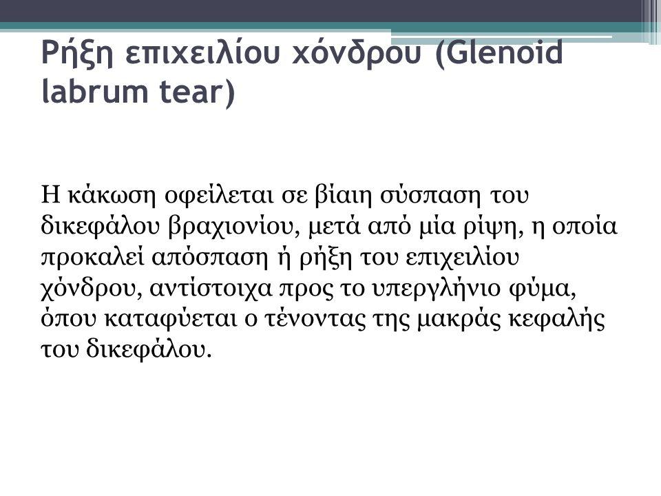 Ρήξη επιχειλίου χόνδρου (Glenoid labrum tear) Η κάκωση οφείλεται σε βίαιη σύσπαση του δικεφάλου βραχιονίου, μετά από μία ρίψη, η οποία προκαλεί απόσπα