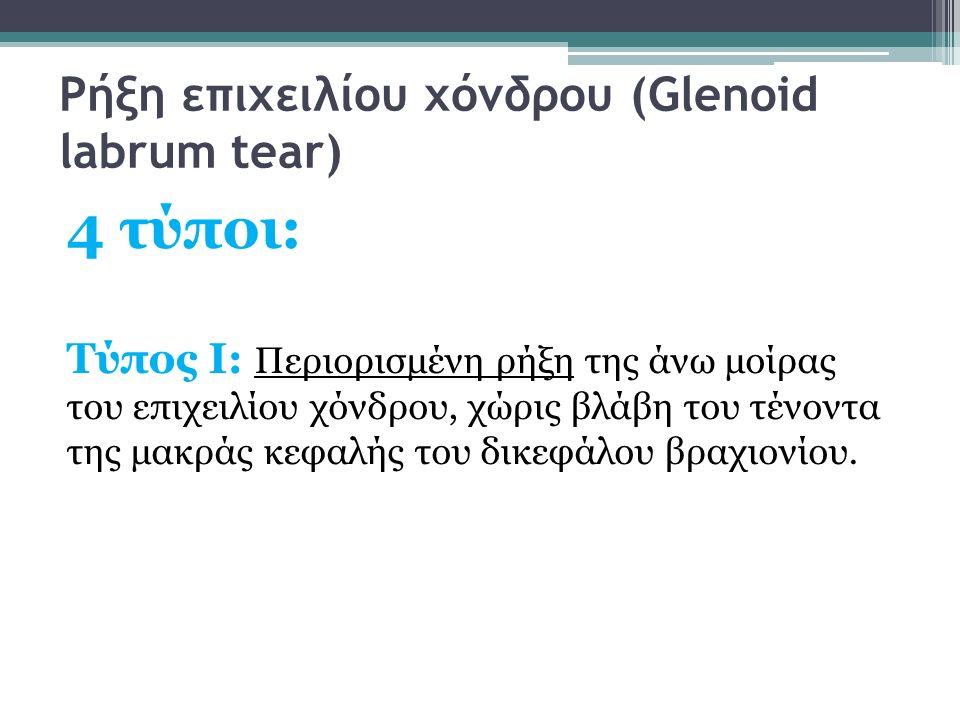 Ρήξη επιχειλίου χόνδρου (Glenoid labrum tear) 4 τύποι: Τύπος Ι: Περιορισμένη ρήξη της άνω μοίρας του επιχειλίου χόνδρου, χώρις βλάβη του τένοντα της μ