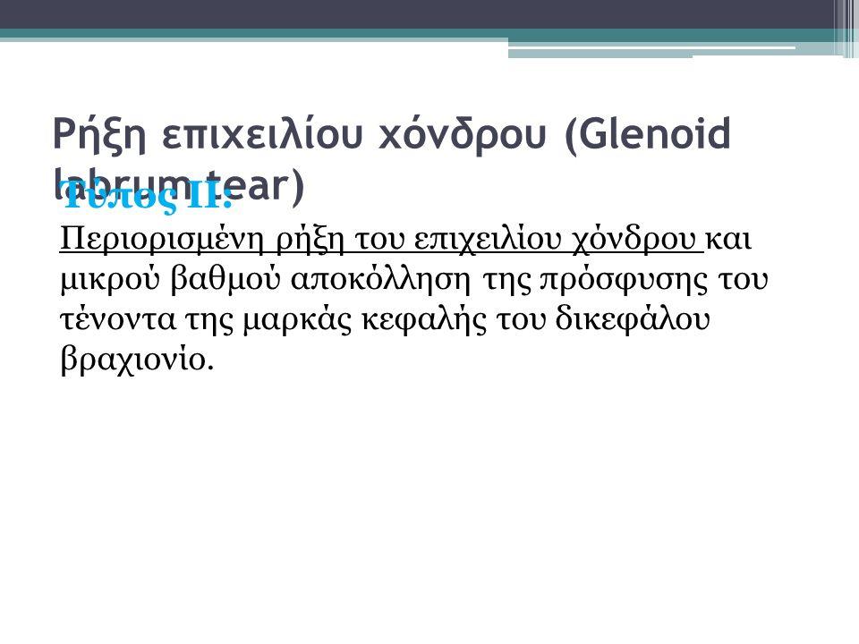 Ρήξη επιχειλίου χόνδρου (Glenoid labrum tear) Τύπος ΙΙ: Περιορισμένη ρήξη του επιχειλίου χόνδρου και μικρού βαθμού αποκόλληση της πρόσφυσης του τένοντ