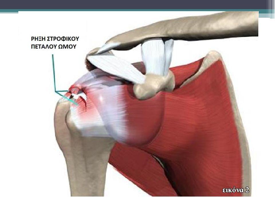 Αντιμετώπιση Μετά την ανάταξη του εξαρθρήματος επιβάλλεται ο έλεγχος των αγγείων και των νεύρων του άνω άκρου και ιδιαίτερα του μασχαλιαίου νεύρου, το οποίο υφίσταται συχνότερα κάκωση από τα άλλα νεύρα της περιοχής του ώμου
