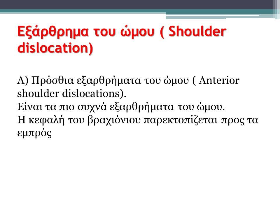 Εξάρθρημα του ώμου ( Shoulder dislocation) Α) Πρόσθια εξαρθρήματα του ώμου ( Anterior shoulder dislocations). Είναι τα πιο συχνά εξαρθρήματα του ώμου.
