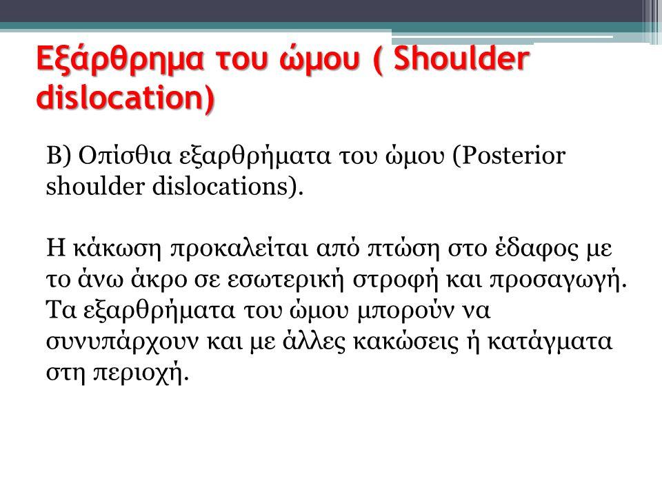 Εξάρθρημα του ώμου ( Shoulder dislocation) Β) Οπίσθια εξαρθρήματα του ώμου (Posterior shoulder dislocations). H κάκωση προκαλείται από πτώση στο έδαφο