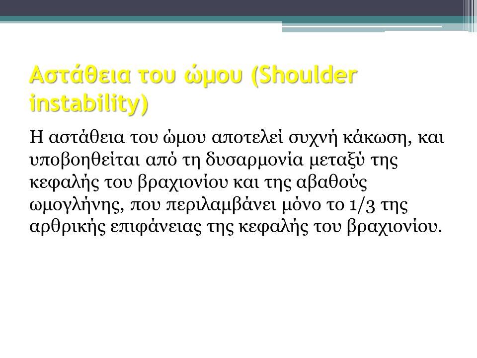 Αστάθεια του ώμου (Shoulder instability) Η αστάθεια του ώμου αποτελεί συχνή κάκωση, και υποβοηθείται από τη δυσαρμονία μεταξύ της κεφαλής του βραχιονί