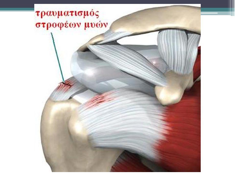 Κλινική εικόνα Ο αθλητής κρατά το άνω άκρο με το αντίθετο, σε ελαφρά απαγωγή, με το αγκώνα σε κάμψη και το αντιβράχιο σε πρηνισμό.